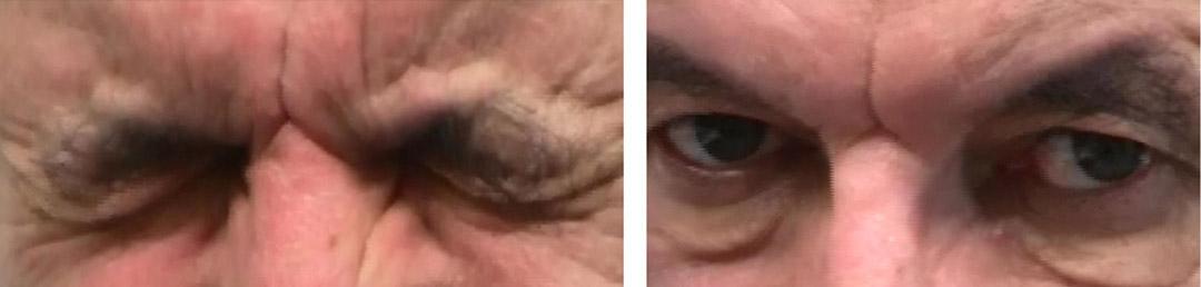 Häufige neuroophthalmologische Erkrankungen - Augenklinik..