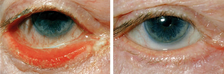 Fehlstellungen der Augenlider - Augenklinik Saar - Sulzbach